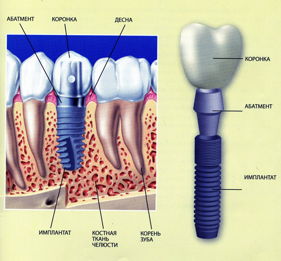 bann_implantat_inside