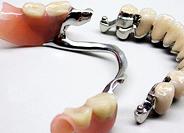 Протезирование зубов. Съёмные зубные протезы.