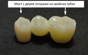 стоматология, зубной мост