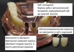 коронка на зуб и на имплантат