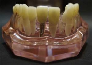 коронки на зуб и имплантат, результат