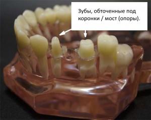 стоматология, зубной мост, подготовка