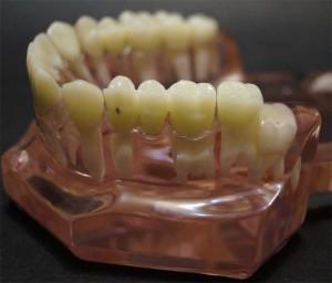 стоматология, зубной мост, результат