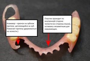 Частичный съёмный протез