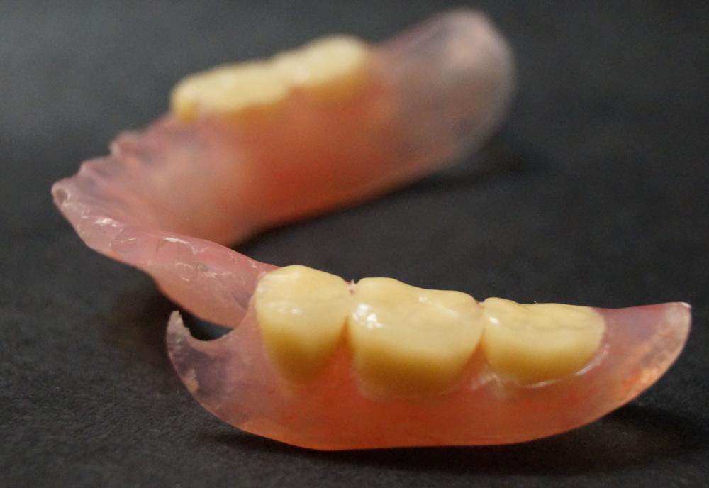 Как отремонтировать зубные протезы в домашних условиях 982