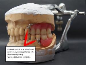 Восковая модель бюгельного протеза на модели. Верхняя и нижняя челюсть.